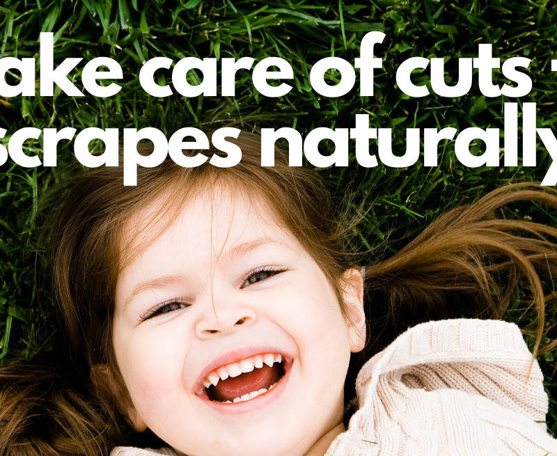 How we Take Care of Cuts and Scrapes Naturally
